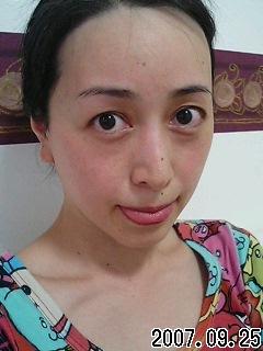 赤ら顔(*≧∪≦*)