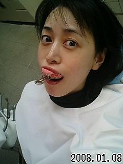 歯医者さんσ(^-^;)