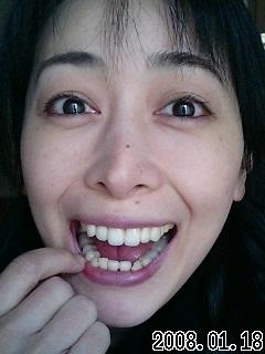 歯(^_^;)